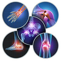 The role of joints